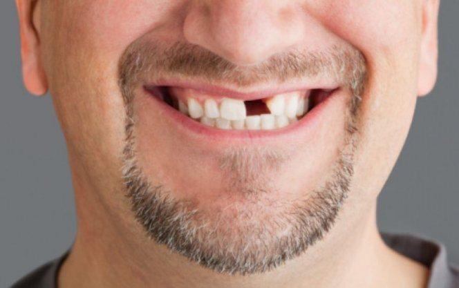 Диабетики чаще страдают от выпадения зубов