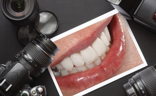 Введение в клиническую стоматологическую фотографию