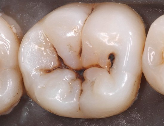 Кариес зубов – болезнь не наследственная
