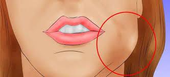 Абсцессы полости рта: причины, виды, лечение