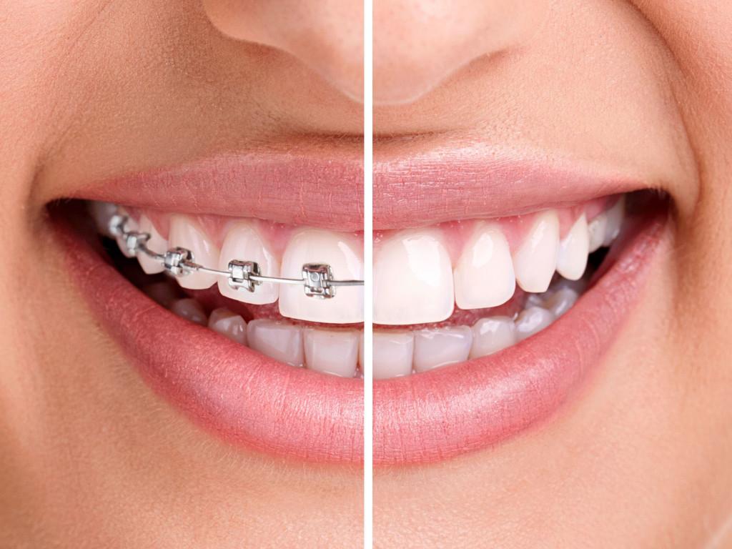 Ортодонтия, или почему нужно исправлять прикус