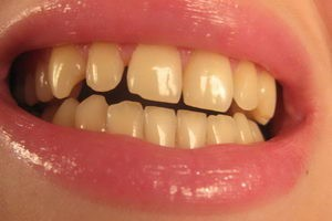 Как избавить зубы от неэстетичного желтого налета?