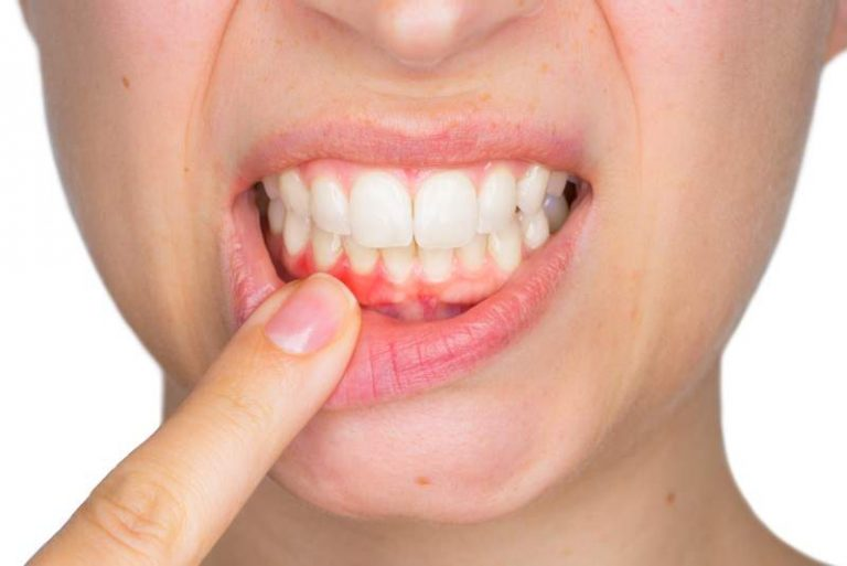 Стоматологи объяснили, что делать при кровоточивости десен