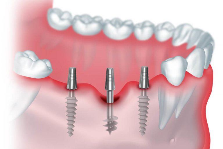 Различные методы имплантации зубов