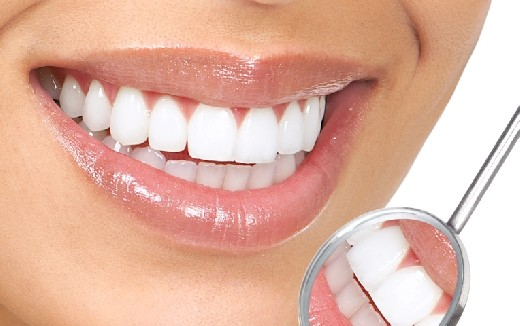 Эти несложные советы помогут сохранить зубы белыми