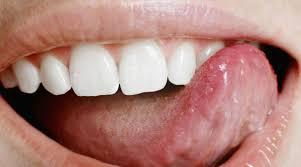 Стоматологи осудили чистку языка