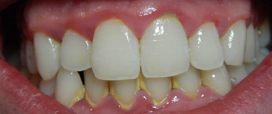 Зубной камень: причины, признаки, осложнения