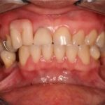 Клинический случай: повторная имплантация в эстетической зоне верхней челюсти
