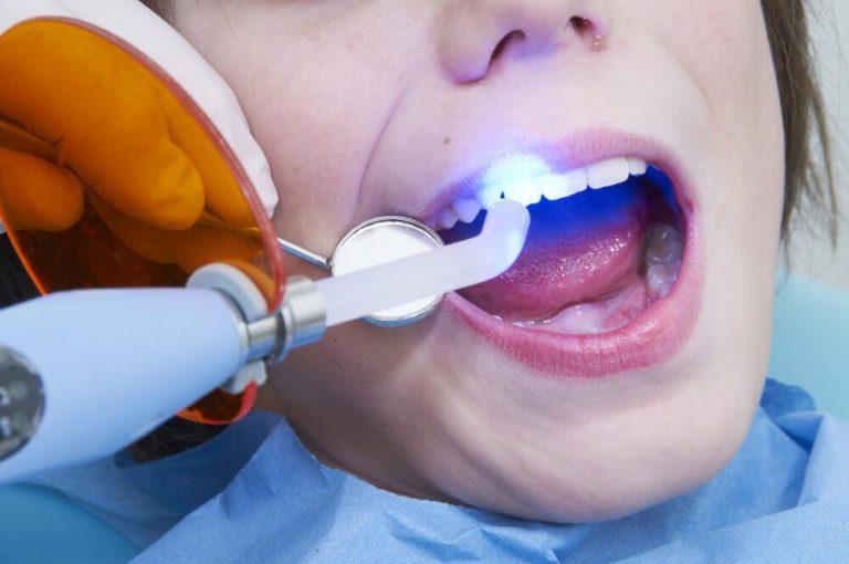 Революция в стоматологии — пломбы, которые противостоят микробным атакам