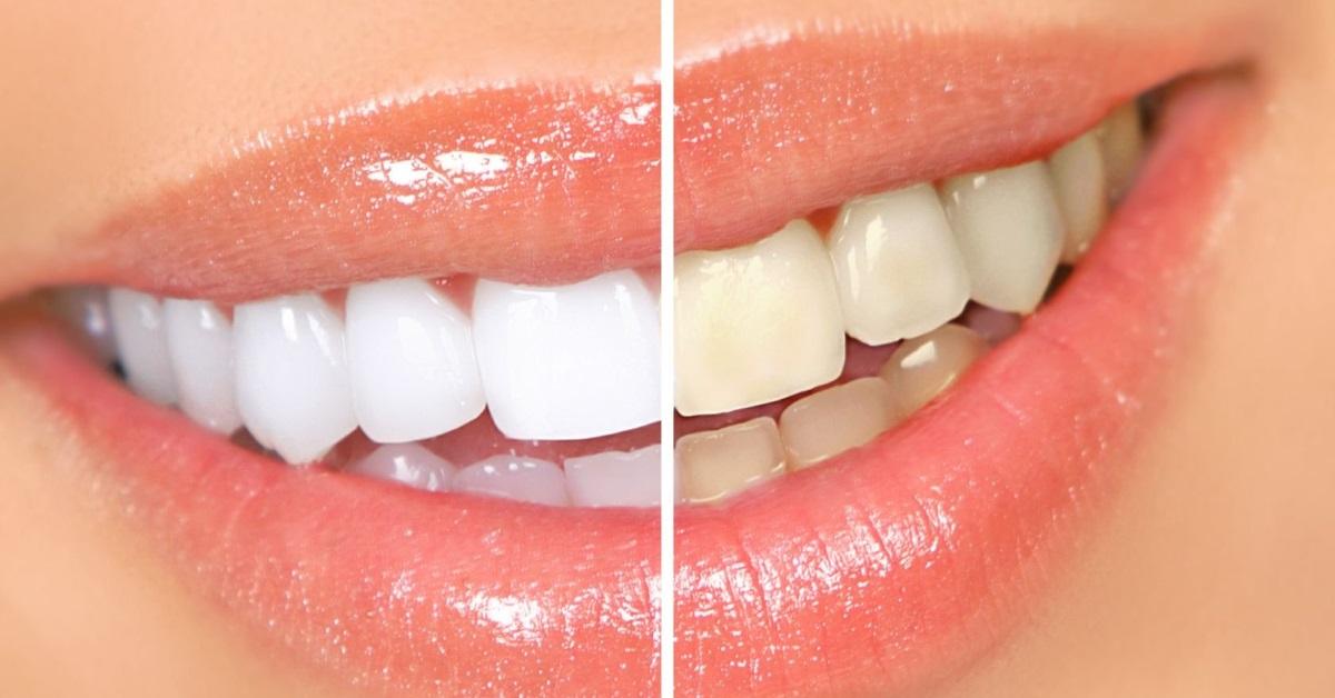Вред или польза? Вся правда об отбеливании зубов