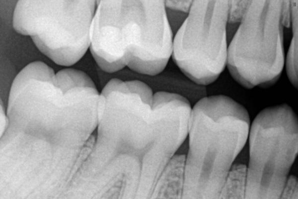Эффективность внутриротовой рентгенографии в технике байтвинг для диагностики кариеса молочных зубов