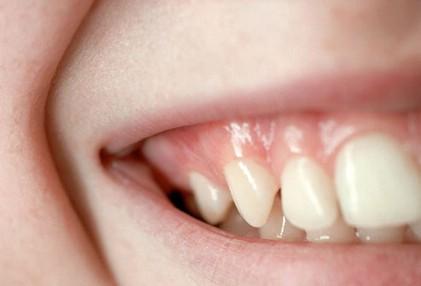 Здоровье десен для очаровательной улыбки