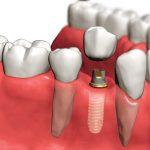 Стоит ли бояться имплантации зубов?