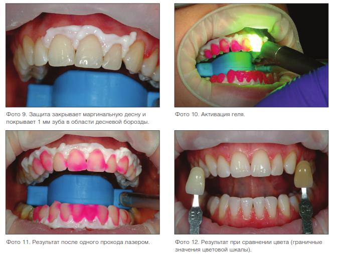 Отбеливание зубов с применением КТР-лазера