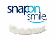 Съемный ортопедический аппарат Snap-On Smile