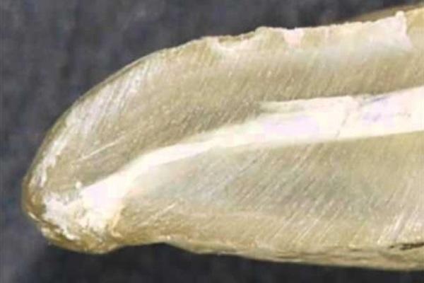 Биокерамика в эндодонтии