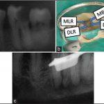 Клинический случай: эндолечение нижнечелюстного моляра с четырьмя корнями