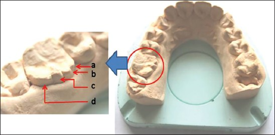 Эндодонтическое лечение моляра с дополнительным нёбным бугорком