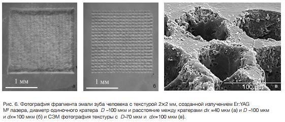 Физические особенности лазерной абляции твердых тканей зуба