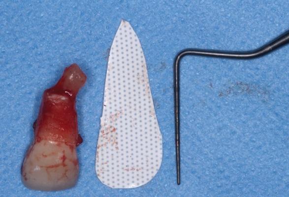 Цитоконус — консервативное лечение дегисценций вестибулярной стенки лунки перед имплантацией