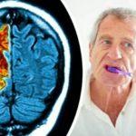 Взаимосвязь хронического пародонтита и болезни Альцгеймера