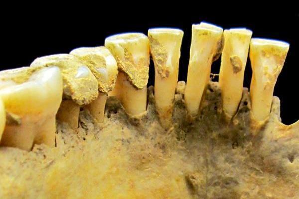 Нашли способ определять пол останков древних людей по анализу зубов