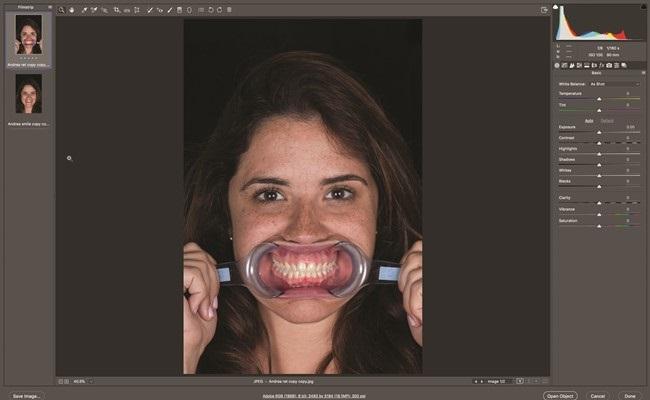 Цифровой анализ улыбки в Photoshop