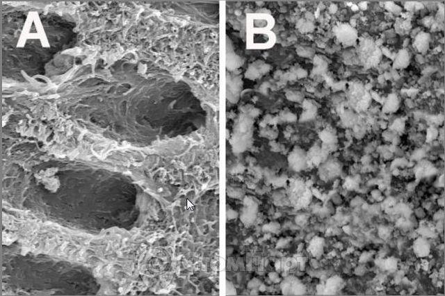 Новое биостекло способно восстанавливать деминерализованный дентин