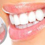 Безопасно ли отбелиание зубов?