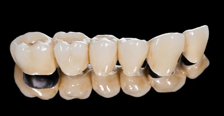 Коронки из металлокерамики по-прежнему остаются золотым стандартом протезирования
