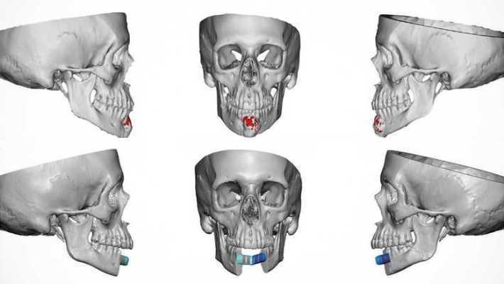 В Алабаме впервые провели реконструктивную операцию на челюсть и одномоментную зубную имплантацию за один день