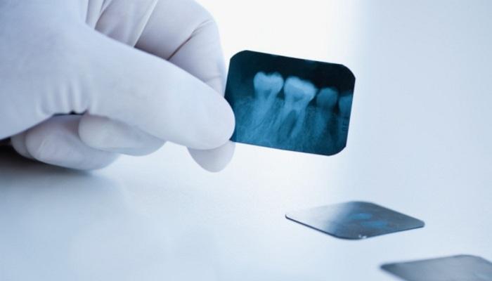 Кто имеет право делать рентгеновские исследования в стоматологической клинике?