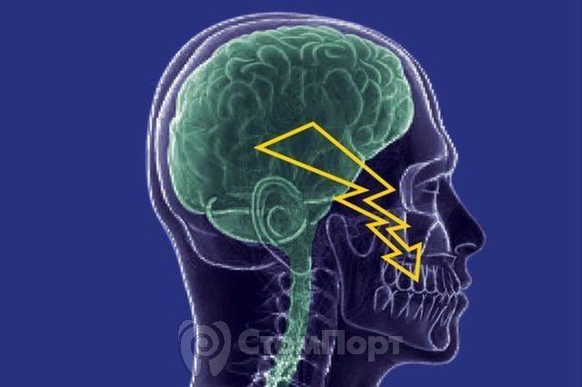 Новый препарат поможет в борьбе с невралгией тройничного нерва