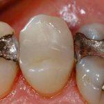 Евросоюз отказывается от стоматологической амальгамы