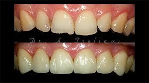 7 советов для прямой реставрации фронтальной группы зубов