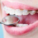 Ортодонтия и установка брекетов