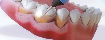 Спасите ваши зубы…