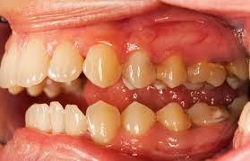 Когда пора отбеливать зубы?