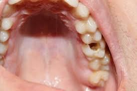Если пломба вывалилась из зуба — вам очень повезло!