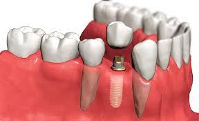 Зубной имплант с хлоргексидином
