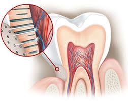 Современный метод в лечении чувствительности зубов