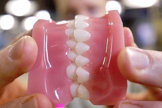 Периодонтит, кариес и генетика: почему выпадают ваши зубы?