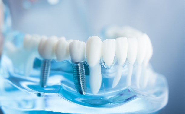 Имплантация зубов, в стоматологии цены на процедуру.