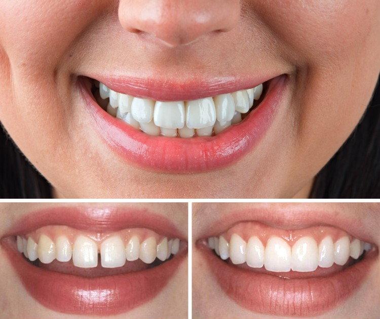 Художественная реставрация зубов вернет радость улыбки