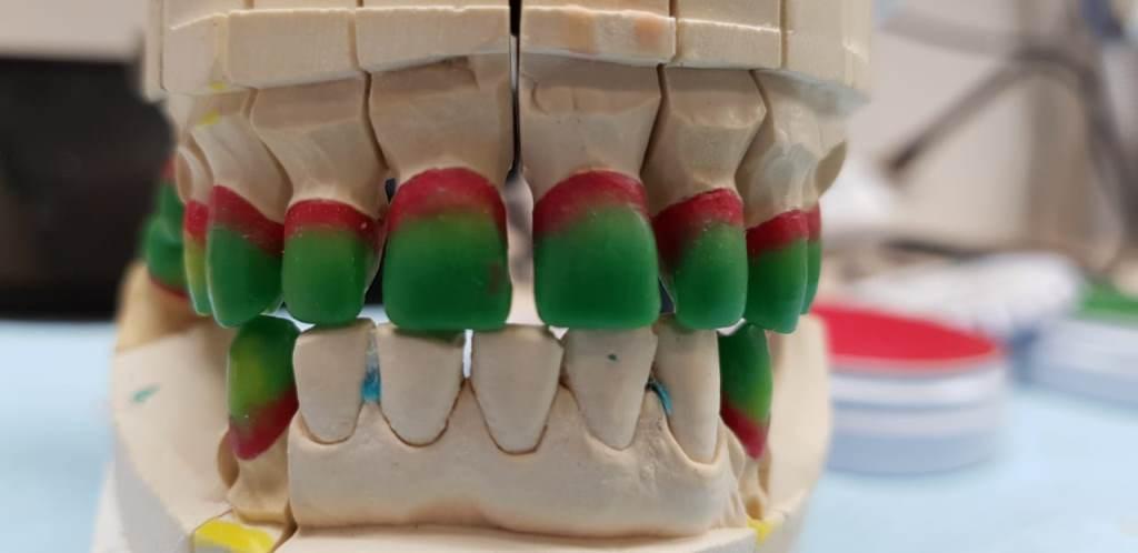 Классическое моделирование коронок и мостов под металлокерамику фронтальной и жевательной группы