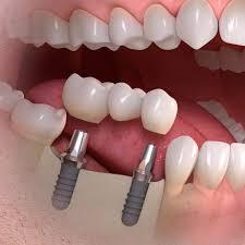 Какие зубы выбрать, если свои «закончились»?