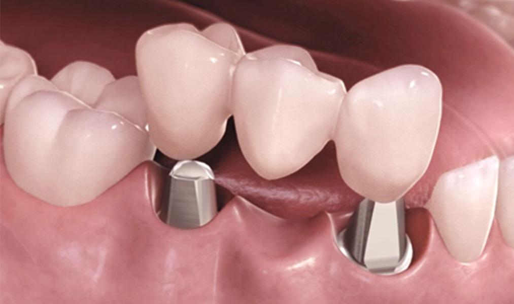 О протезировании на имплантах