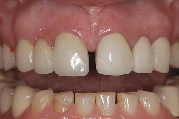Ортодонтическая интрузия: клинические возможности использования