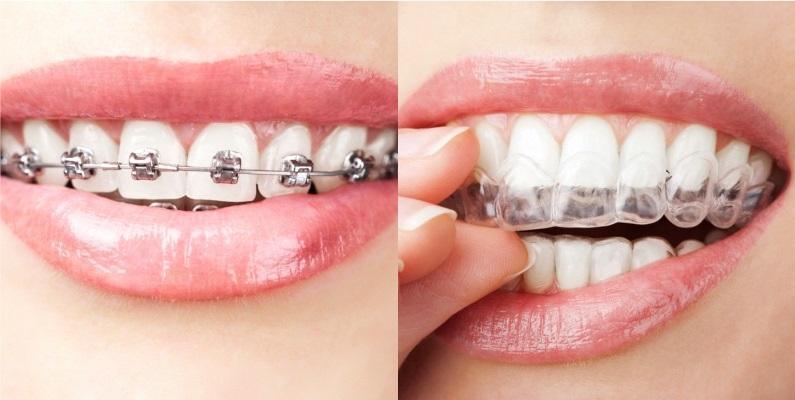 Результаты обзора исследований, сравнивающих методики выравнивания зубного ряда с помощью элайнеров и брекет-систем