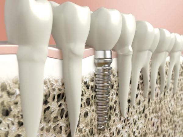 Преимущества имплантации зубов и установки виниров в Киеве